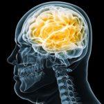 L'obésité peut entraîner des lésions cérébrales.
