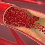 Δημιούργησε μια υδρογέλη που μπορεί να σταματήσει την αρτηριακή αιμορραγία