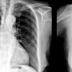 Acupuncture caused dangerous lung damage