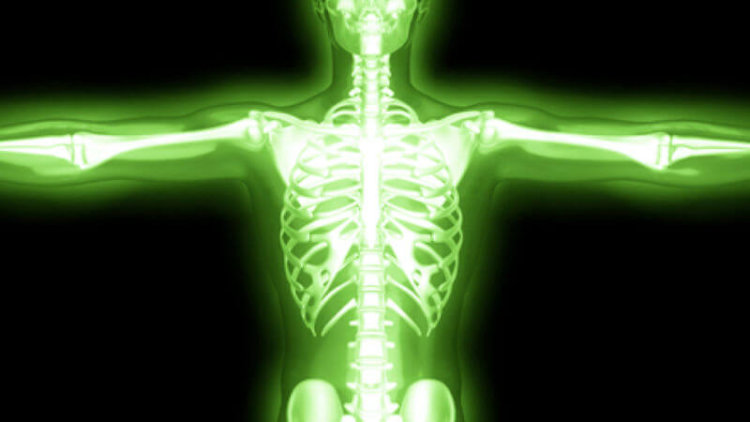 Does radiation do what How Radiation