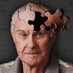 Depression May Cause Alzheimer's