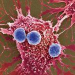Для поліпшення виживаності ракові клітини можуть пожирати собі подібних
