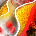 What is cholesterol and is it dangerous to health?