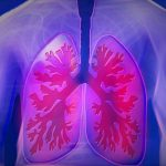 New blood test reveals lung cancer with high accuracy